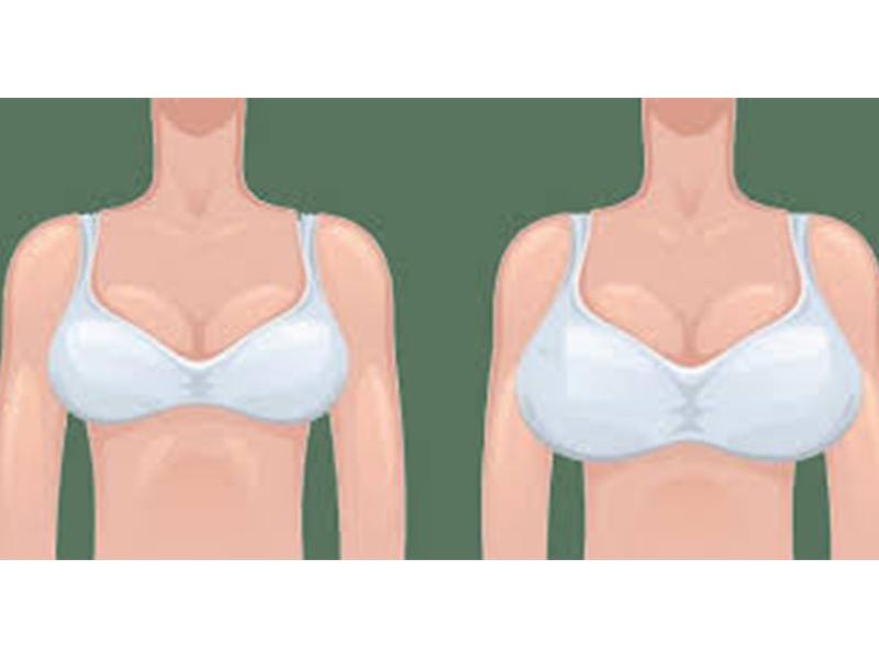 جراحة تجميل الصدر